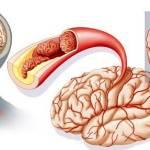 За шаг до инсульта: предупреждающие знаки, которые посылает тело перед возникновением бо